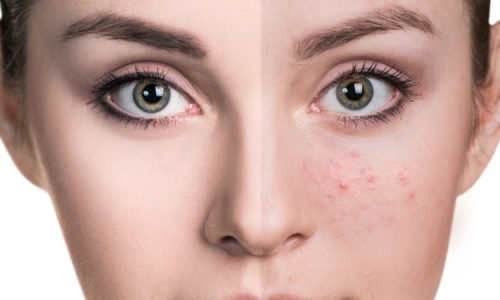 Come trattare la pelle impura per avere un viso radioso